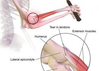 Tennis Elbow Treatment and Golfer's Elbow Treatment with a Moist Heating Pad